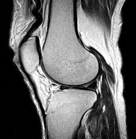 Knee Sagittal MRI scan