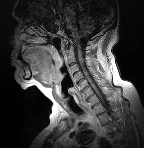 Soft tissue neck MRI scan