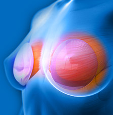 Breast Implants MRI scan