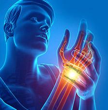 Hand MRI scan