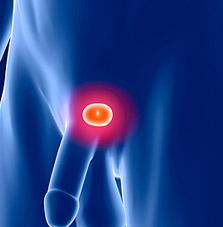 Prostate MRI scan